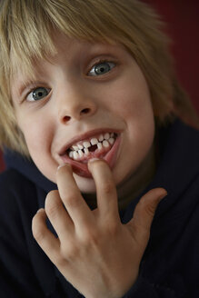 Austria, Boy showing tooth gap, close up - CWF000036