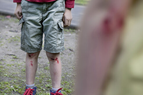 Germany, North Rhine Westphalia, Cologne, Boys injured in playground - FMKYF000421
