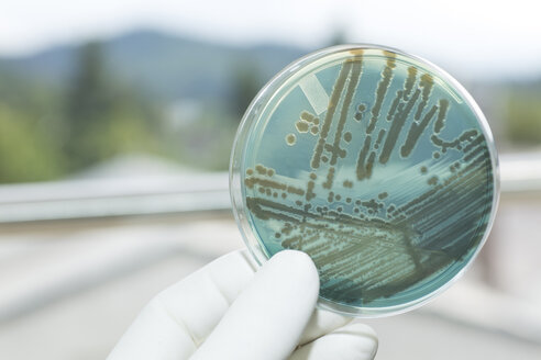 Germany, Freiburg, Human hand holding petri dish with bacteria, close up - DRF000011