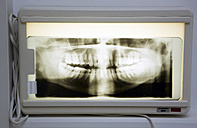 X-ray of jawbone in a dental surgery - DHL000114