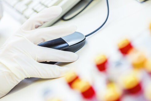 Blood samples and hand with protective glove using computer mouse - DISF001561