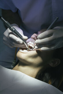 Dentist making a dental cleaning - ABZF000148