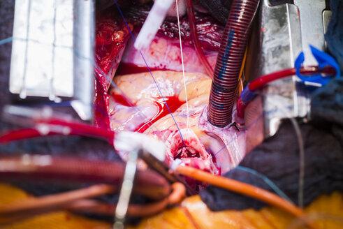 Heart valve operation - MWEF000057