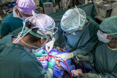 Heart surgeons and operating room nurse during a heart valve operation - MWEF000075