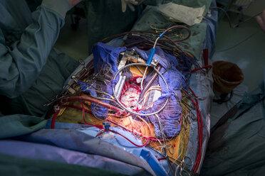 Heart valve operation - MWEF000078