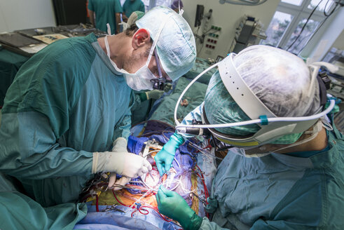 Heart surgeons during a heart valve operation - MWEF000081