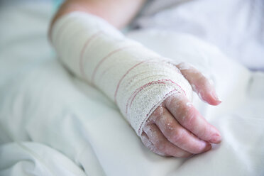 Woman in the hospital, operated hand - ERLF000177