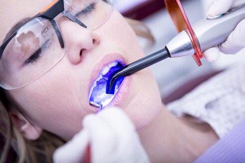 Hardening of dental filling at the dentist - WESTF22907