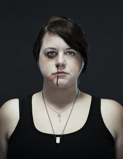 Portrait of injured woman standing against black background - CAVF01859