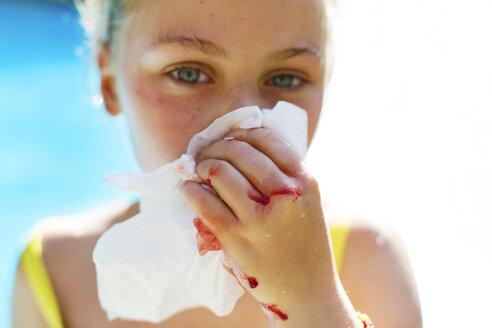 Portrait of girl covering her bleeding nose - CAVF37829
