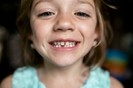 Close-up portrait of girl showing gap tooth - CAVF42378