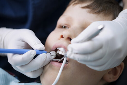 Close-up of boy being examined by dentist - MASF05227