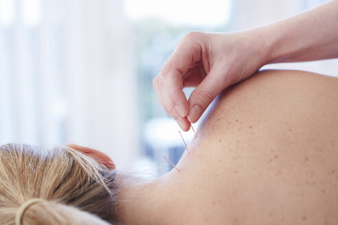 Woman receiving acupuncture in shoulder - CAIF21207