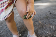 Little girl covering scratch on knee with leaf, partial view - KMKF00471