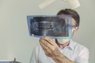 Dentist looking at x-ray image before treatment - MFF04554