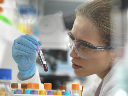 Health Screening, Scientist holding a tube containing a blood sample ready for analysis in the laboratory - ABRF00327