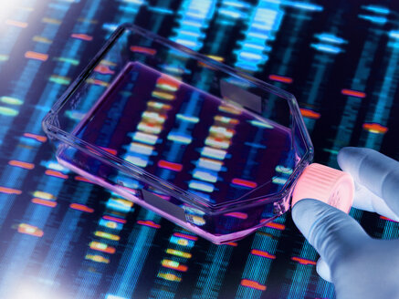 Genetic Engineering, Scientist viewing cells in a culture jar with a DNA profiles on a screen in the background illustrating gene editing - ABRF00338