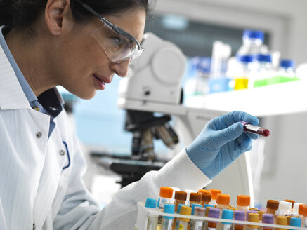 Lab technician preparing a variety of human samples for medical testing in the laboratory - ABRF00391