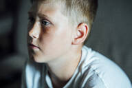 Portrait of boy with freckles - VPIF01390