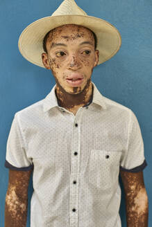 Portrait of young man with vitiligo wearing a hat, blue wall in the background - VEGF01332