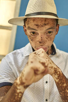 Portrait of young man with vitiligo wearing a hat, showing his fist - VEGF01335
