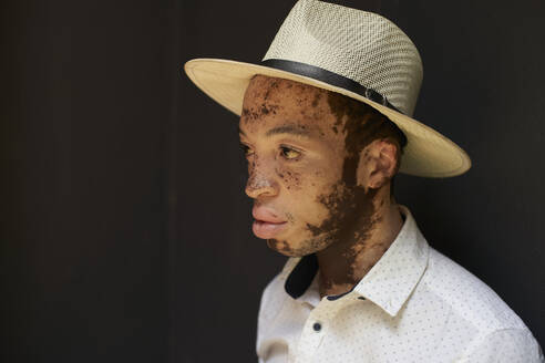 Portrait of young man with vitiligo wearing a hat - VEGF01344