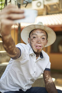 Young man with vitiligo using smartphone and taking a selfie - VEGF01356