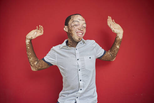 Young man with vitiligo dancing in front of a red wall - VEGF01359