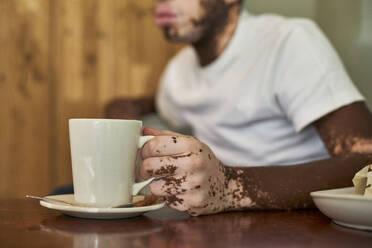 Close-up of the hand of a man with vitiligo holding a coffee mug - VEGF01371