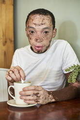 Young man with vitiligo having a cup of coffee in a cafeteria - VEGF01374