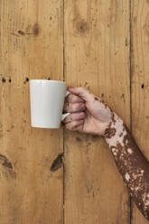 Close-up of the hand of a man with vitiligo holding a cup of coffee on a wooden wall - VEGF01377