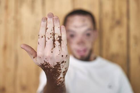 Young man with vitiligo - VEGF01383