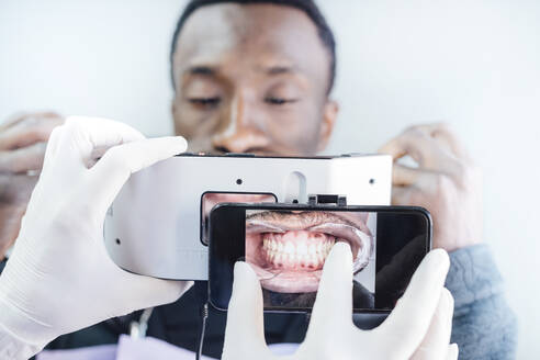 Dentist taking photo of teeth with special photographic apparatus - JCMF00407