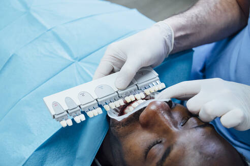 Close-up of patient getting dental teeth whitening treatment - JCMF00422