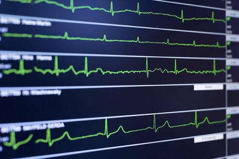 Close-upof EKG screen display - SKAF00137