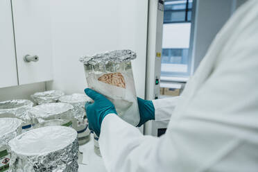 Scientist holding preserved human brain beaker while standing at laboratory - MFF06523